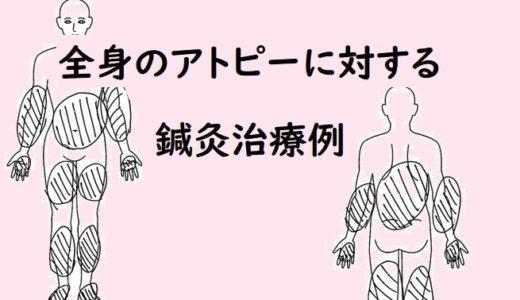 アトピー性皮膚炎の鍼灸治療例(4)
