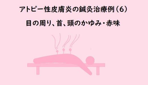 顔・頭のアトピー性皮膚炎の鍼灸治療(6)